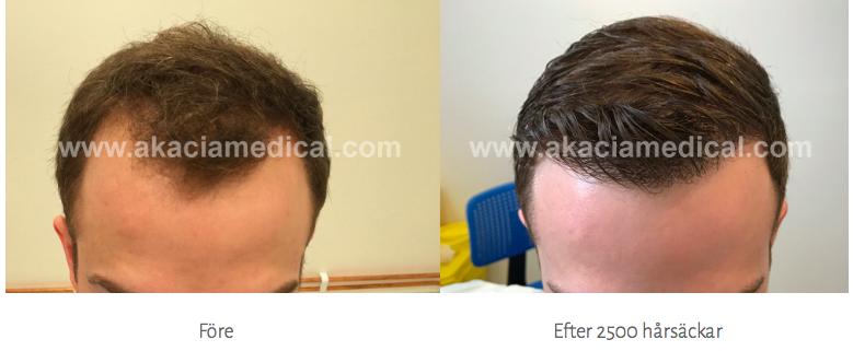 tunt hår behandling